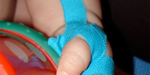 Kinesiology Tape Therapy in Pediatric Disorders