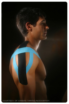 Kinesio Tape on Shoulder